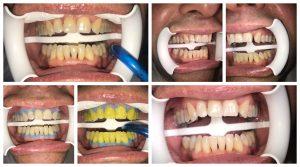 Poliranje zuba efekat