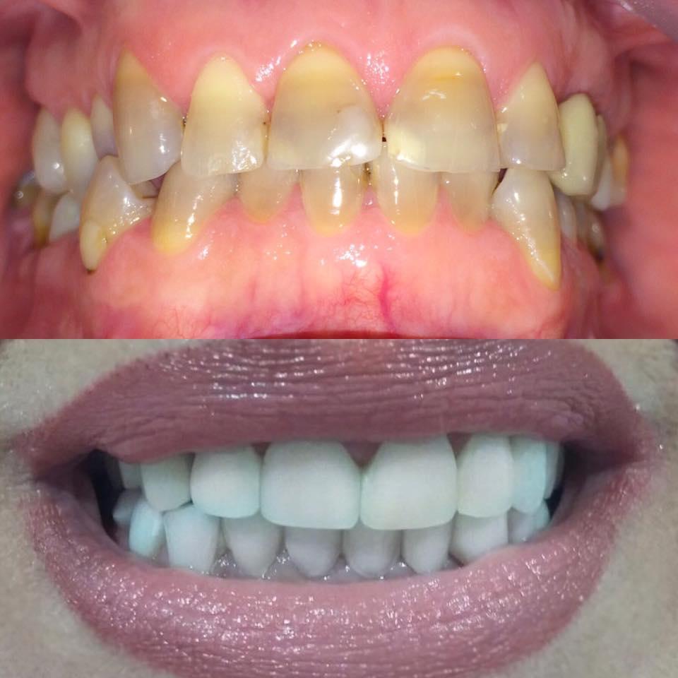 Gel za izbeljivanje zuba