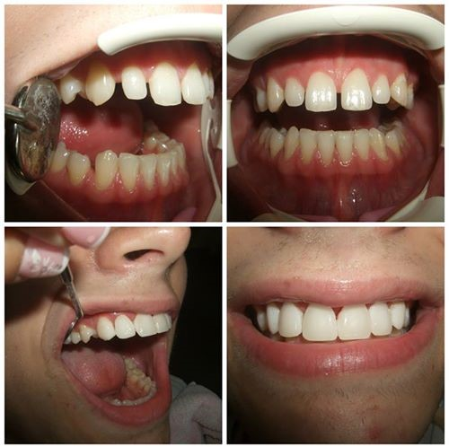 Zubna faseta cena