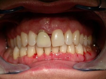 Posle parodontološke terapije.
