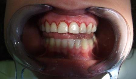 Neposredno nakon gingivektomije