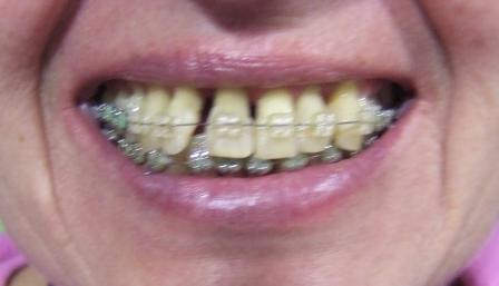 Uradjena parodontološka terapija,ugradnja veštačke kosti i ortodontska terapija.