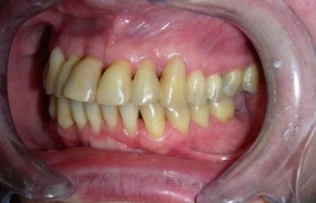 2010.godina – Pacijentkinja ima sve svoje zube. Stanje stabilno.