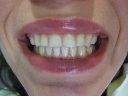 6 meseci posle gingivektomije