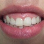 Posle skidanja ortodontskog aparata