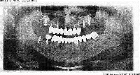Stanje posle sinus lifta i ugradnje implantata